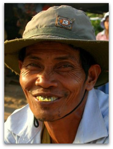 cambodia-man-gold-teeth